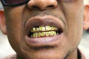 modas dentales peligrosas