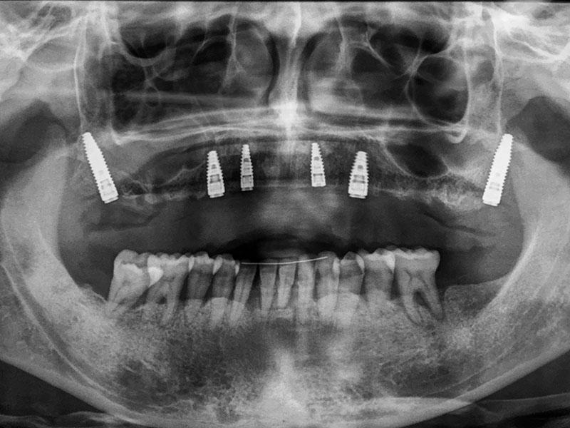 implantes pterigoideos