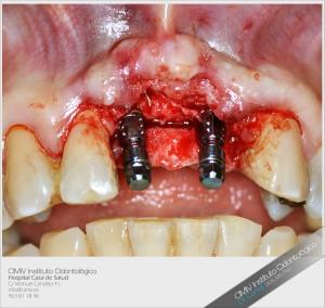 Manejo del espacio en implantología
