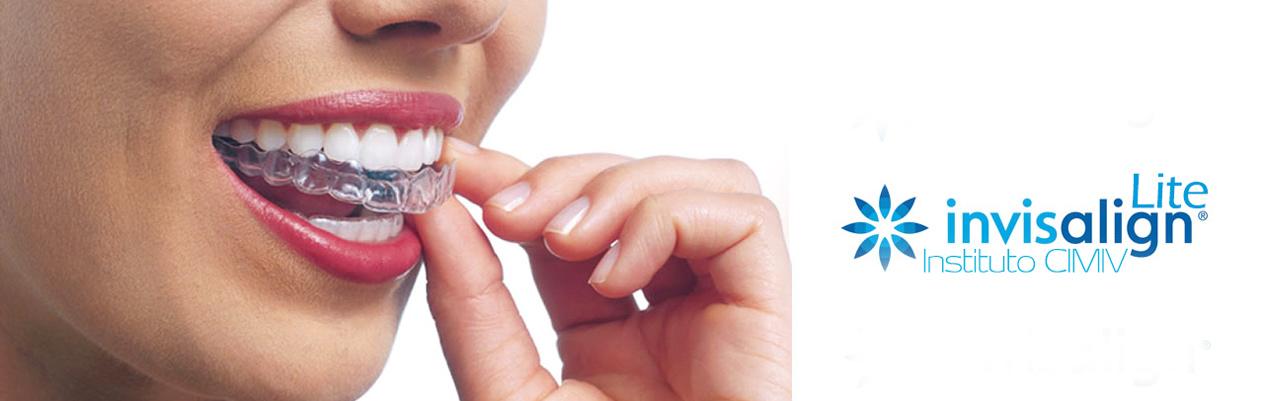 Ortodoncia Invisible Invisalign Lite