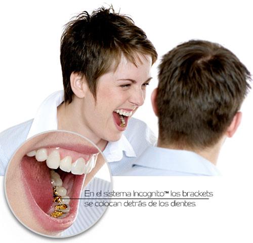 Ortodoncia Lingual Incógnito