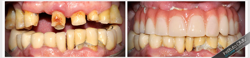 ventajas carga inmediata sobre implante