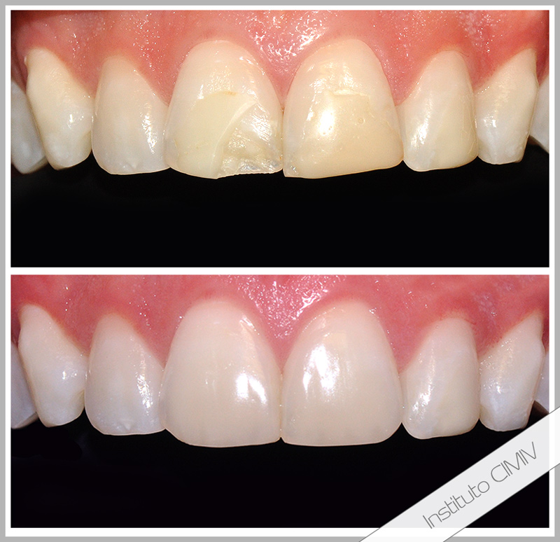 rehabilitación oral composite