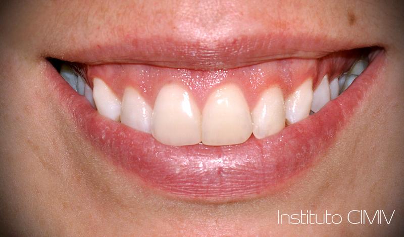 rehabilitación oral composite