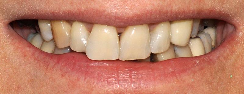 huecos negros entre los dientes rehabilitación con composite
